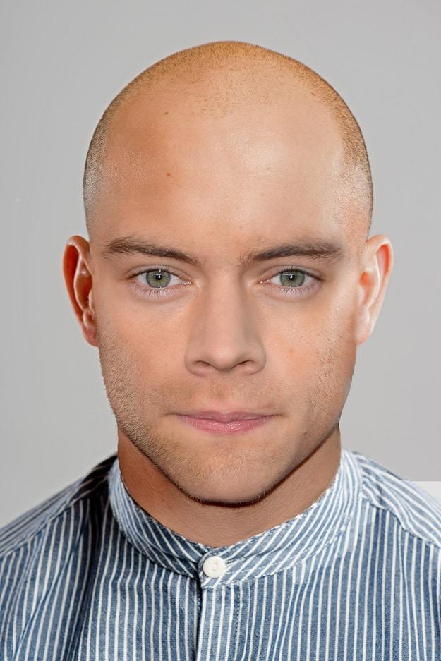 1D Bald 2
