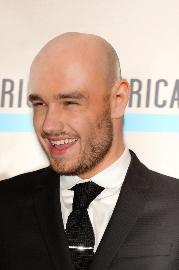 1D Bald 3