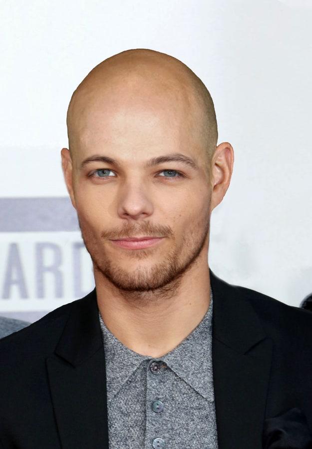 1D Bald 4