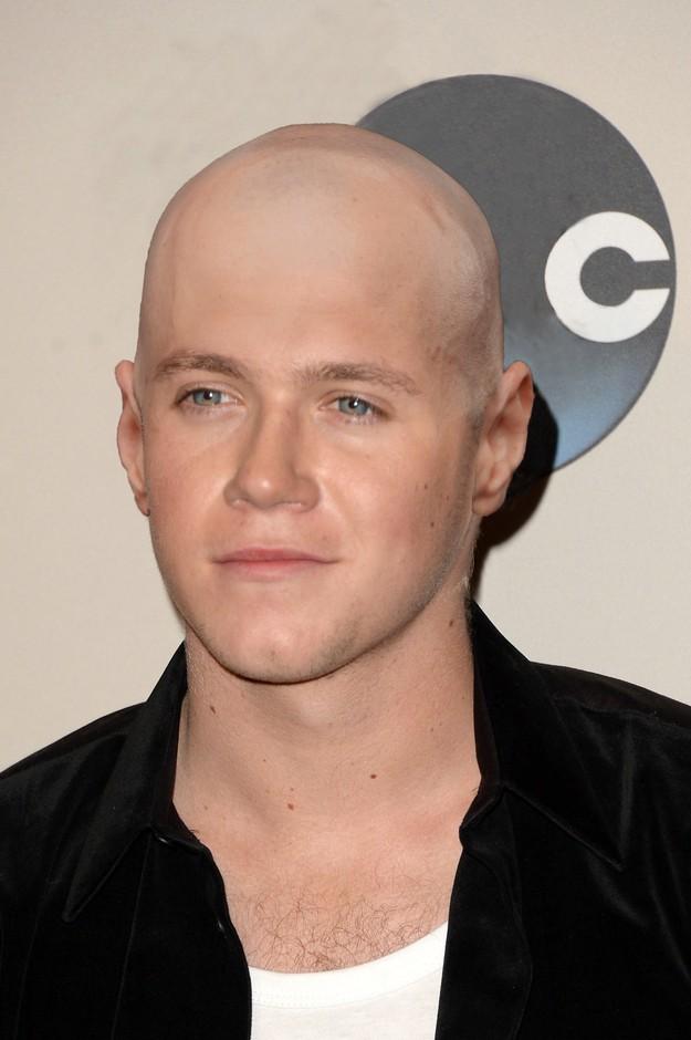 1D Bald 5