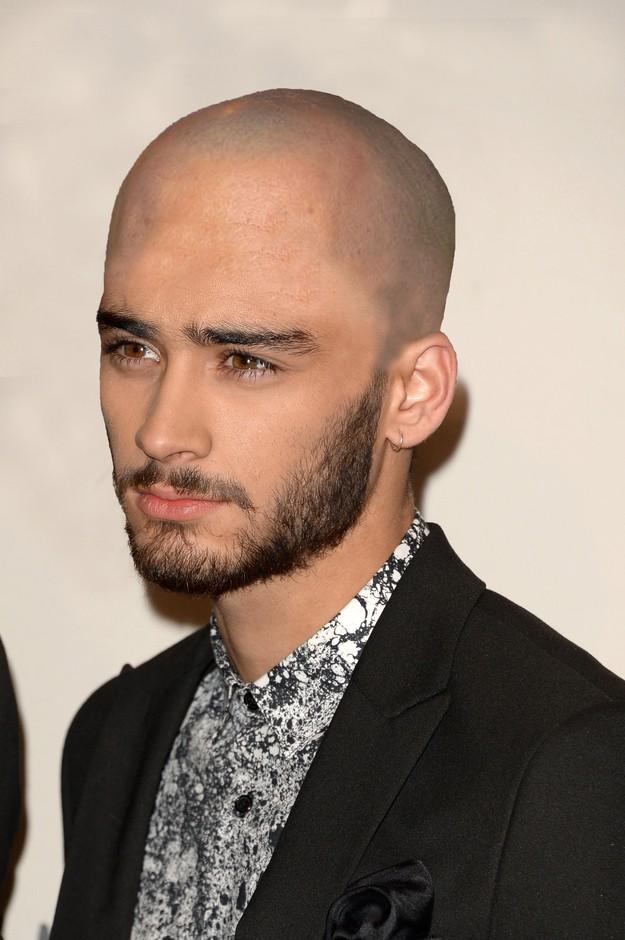 1D Bald 7