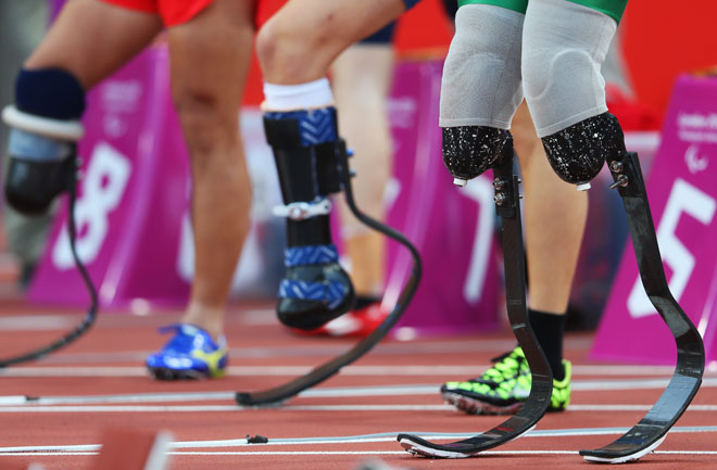 2-artificial-limbs-flex-foot-carbon-660